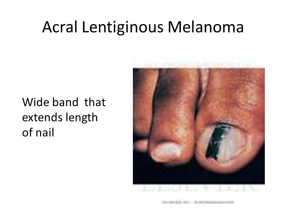 Acral Lentiginous Melanoma Wide band that extends length of nail