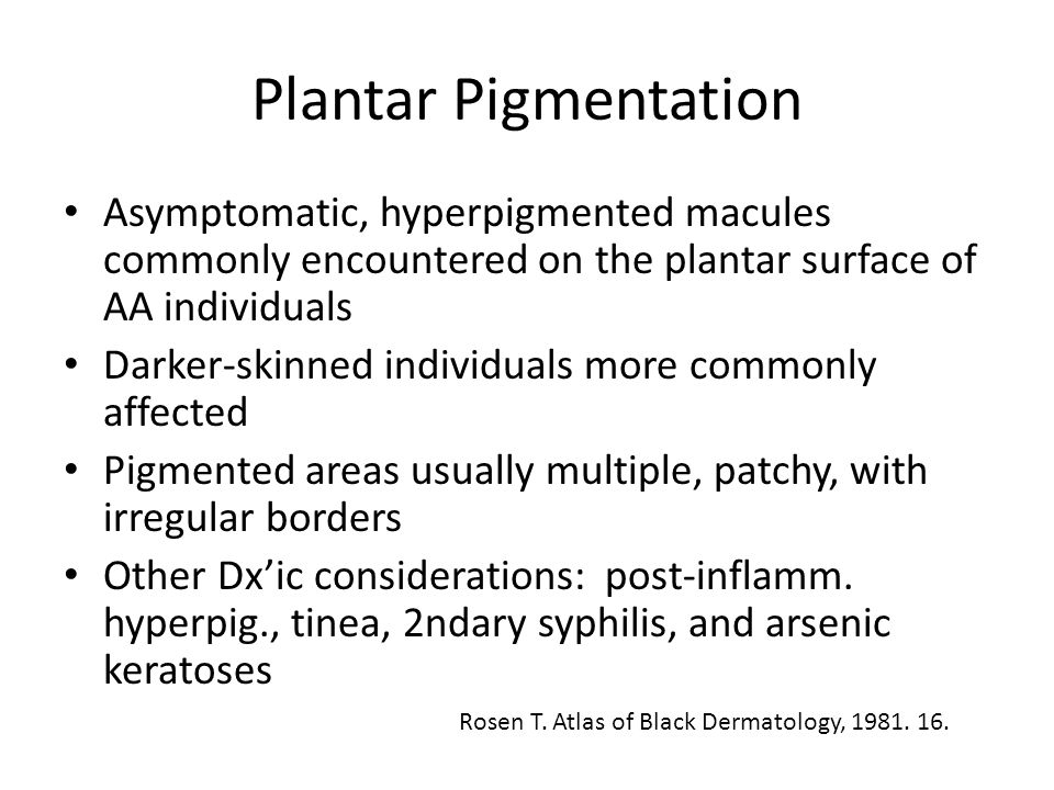 Plantar Pigmentation Asymptomatic, hyperpigmented macules commonly encountered on the plantar surface of AA individuals Darker-skinned individuals mor