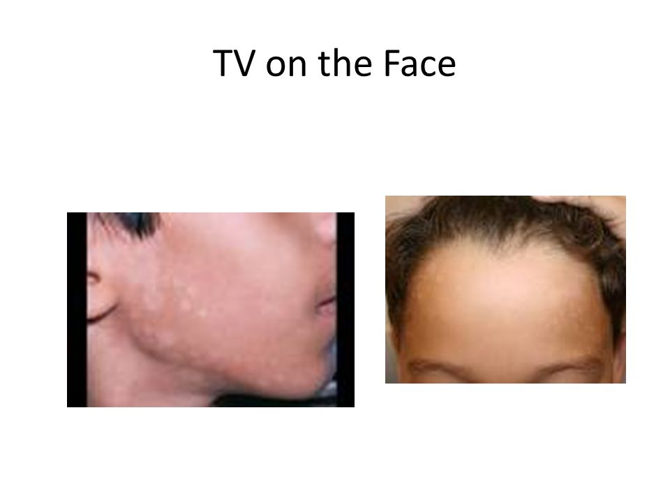 TV on the Face