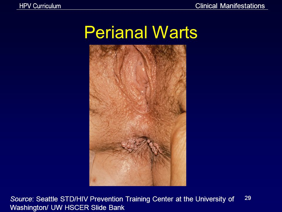 HPV Curriculum 29 Perianal Warts Clinical Manifestations Source: Seattle STD/HIV Prevention Training Center at the University of Washington/ UW HSCER