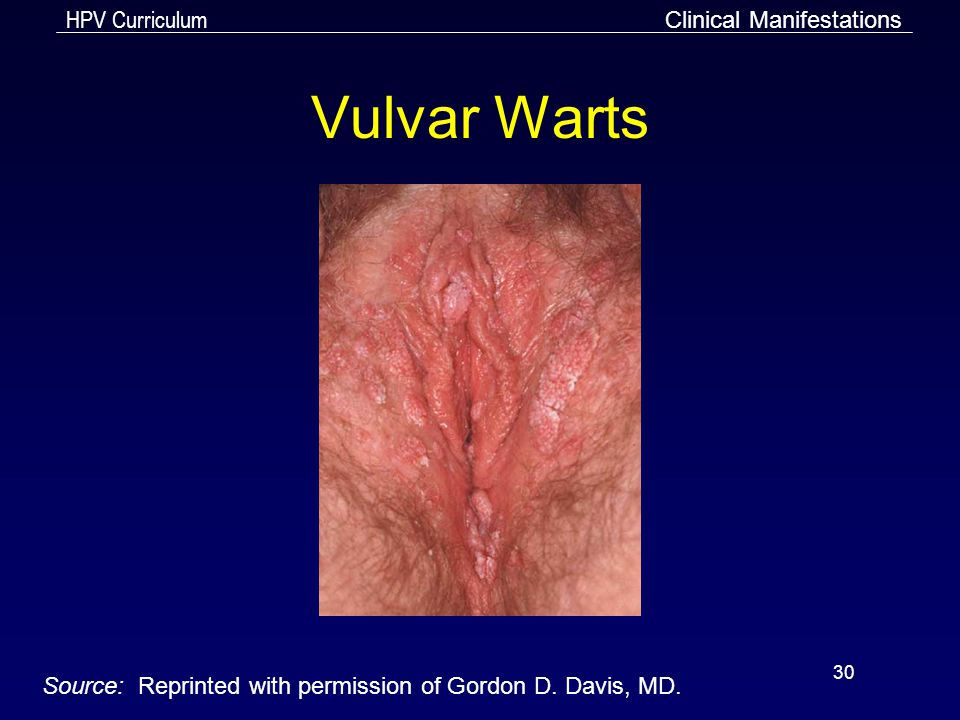 HPV Curriculum 30 Vulvar Warts Clinical Manifestations Source: Reprinted with permission of Gordon D. Davis, MD.
