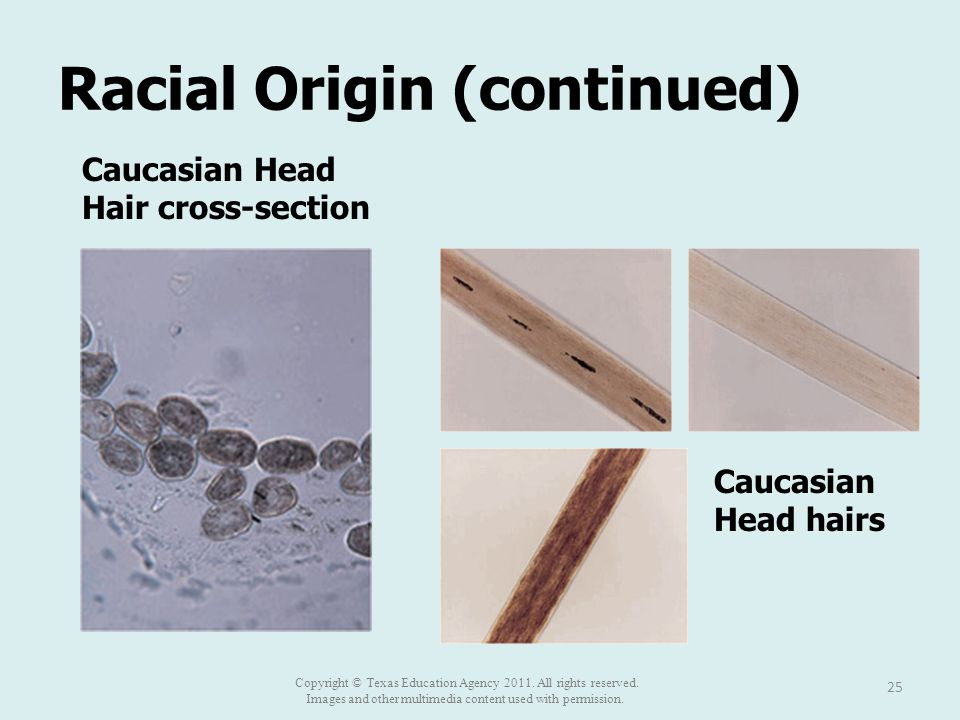 Racial Origin (continued) 25 Caucasian Head Hair cross-section Caucasian Head hairs Copyright © Texas Education Agency 2011. All rights reserved. Imag