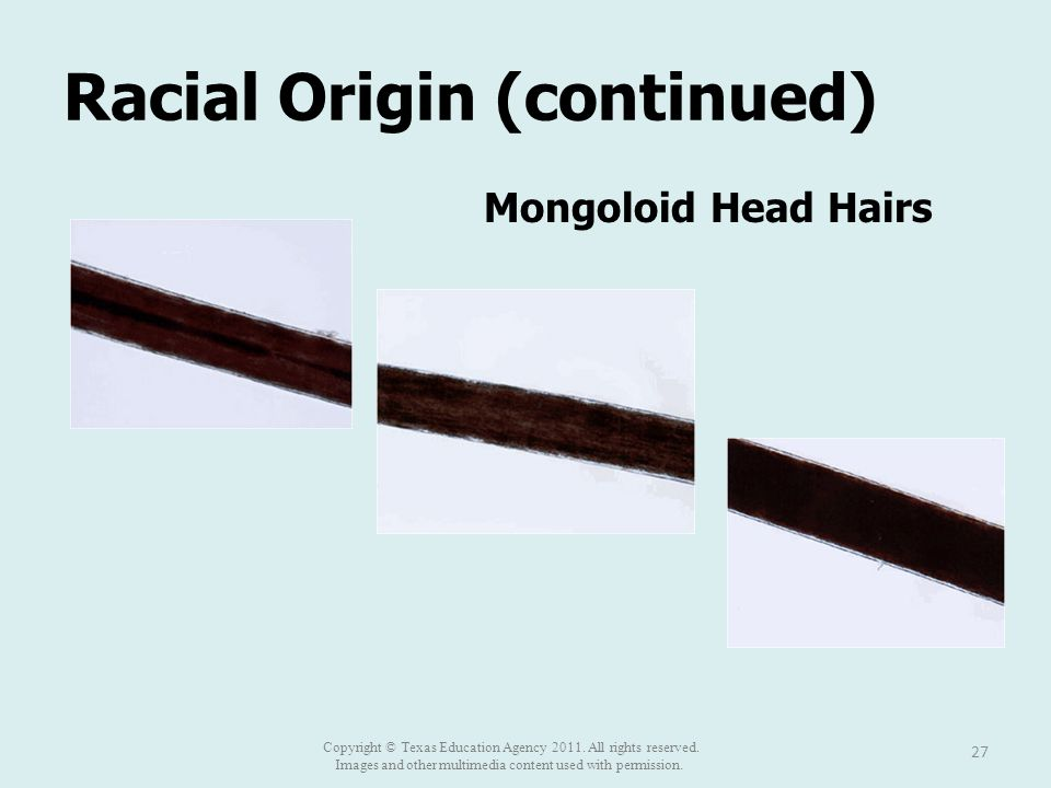 Racial Origin (continued) 27 Mongoloid Head Hairs Copyright © Texas Education Agency 2011. All rights reserved. Images and other multimedia content us