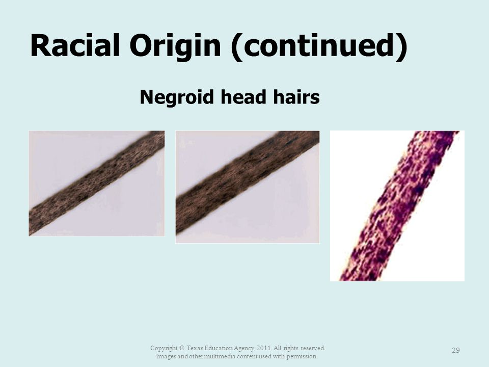 Racial Origin (continued) 29 Negroid head hairs Copyright © Texas Education Agency 2011.