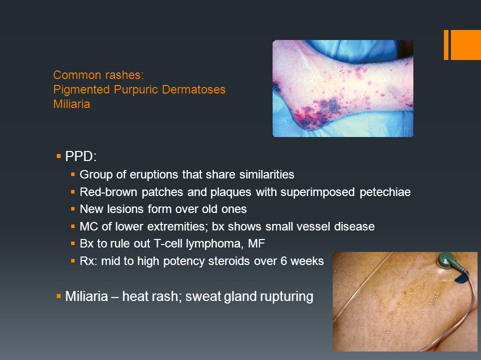 Common rashes: Pigmented Purpuric Dermatoses Miliaria  PPD:  Group of eruptions that share similarities  Red-brown patches and plaques with superim