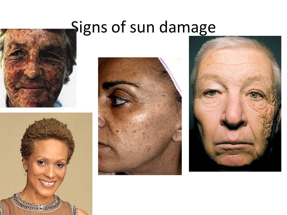 Signs of sun damage