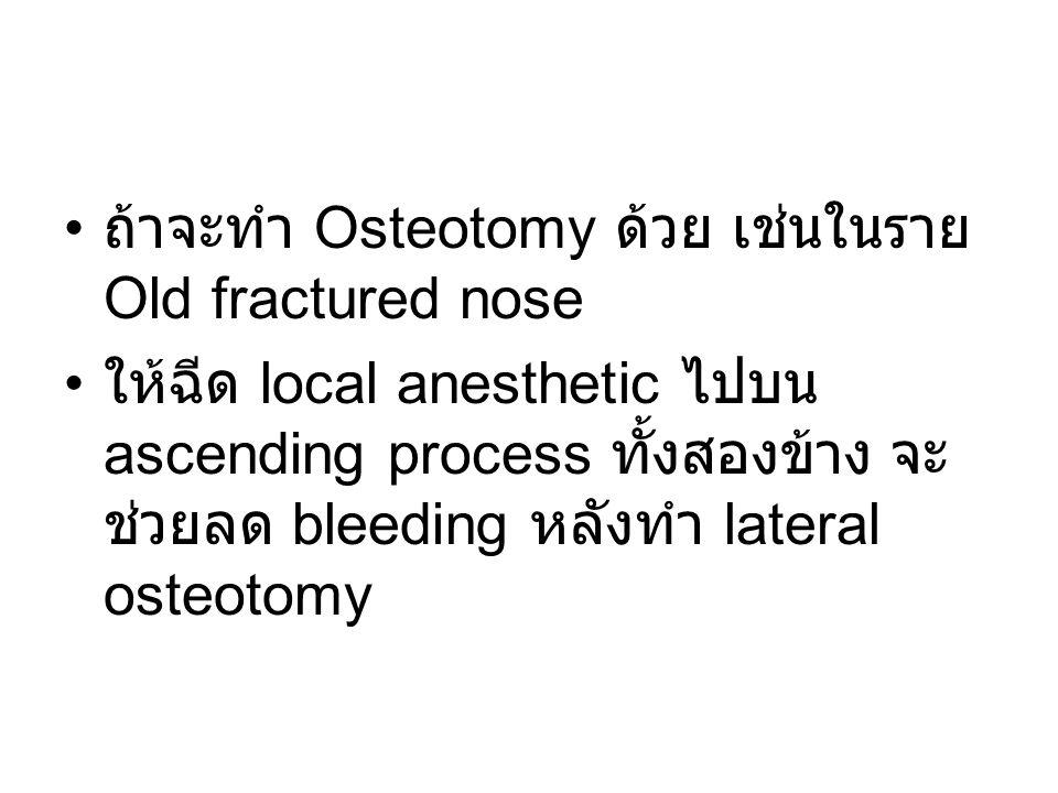 ถ้าจะทำ Osteotomy ด้วย เช่นในราย Old fractured nose ให้ฉีด local anesthetic ไปบน ascending process ทั้งสองข้าง จะ ช่วยลด bleeding หลังทำ lateral osteo