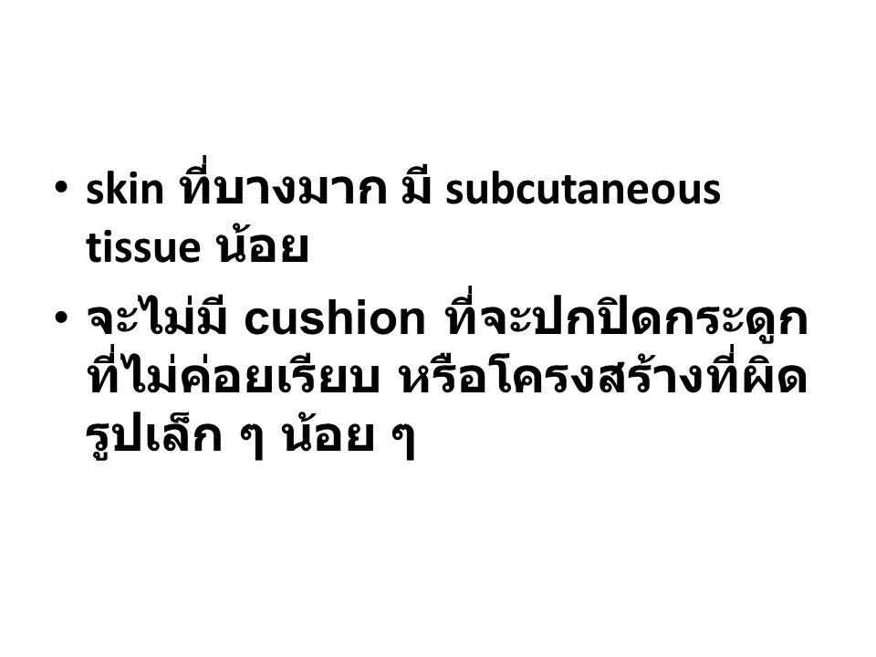skin ที่บางมาก มี subcutaneous tissue น้อย จะไม่มี cushion ที่จะปกปิดกระดูก ที่ไม่ค่อยเรียบ หรือโครงสร้างที่ผิด รูปเล็ก ๆ น้อย ๆ