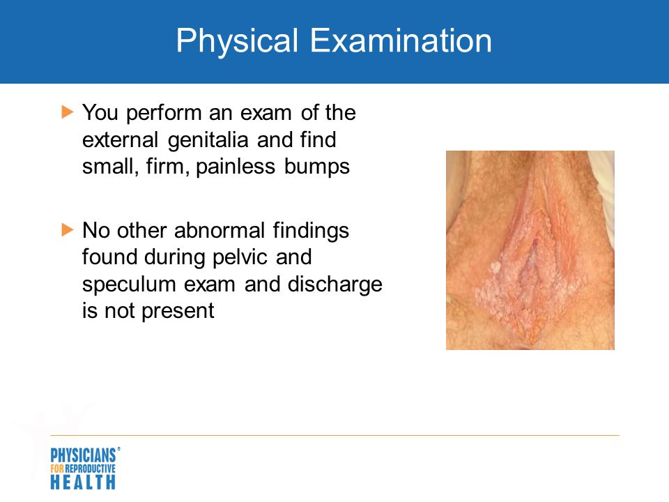  Physical Examination  You perform an exam of the external genitalia and find small, firm, painless bumps  No other abnormal findings found during