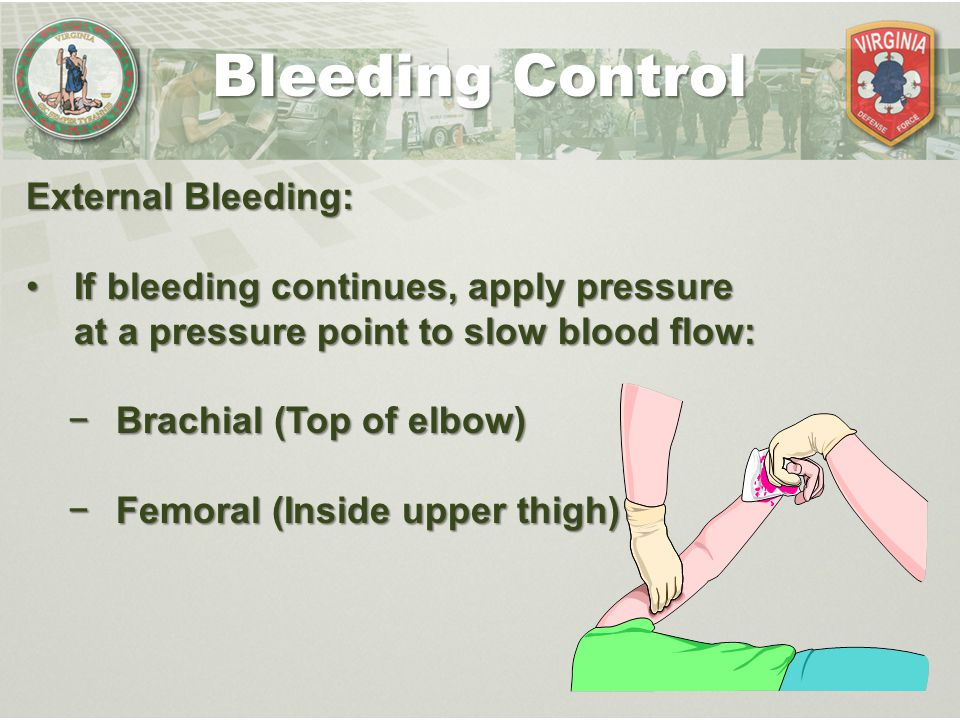 Bleeding Control External Bleeding: If bleeding continues, apply pressure at a pressure point to slow blood flow:If bleeding continues, apply pressure