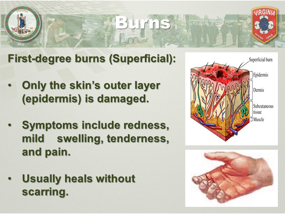 Burns First-degree burns (Superficial): Only the skin's outer layer (epidermis) is damaged.Only the skin's outer layer (epidermis) is damaged. Symptom
