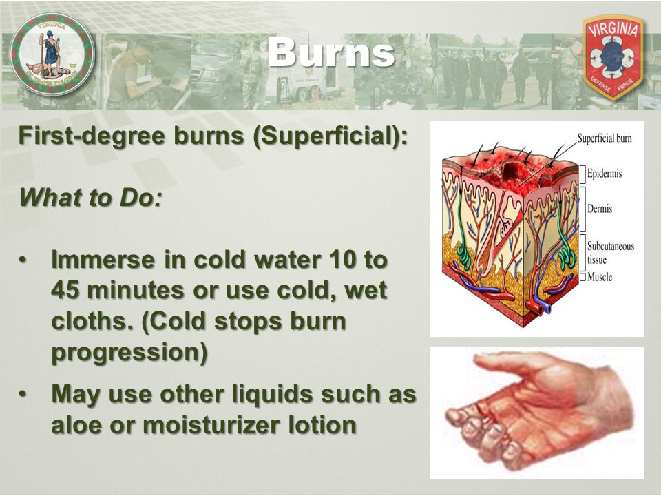 Burns First-degree burns (Superficial): What to Do: Immerse in cold water 10 to 45 minutes or use cold, wet cloths. (Cold stops burn progression)Immer