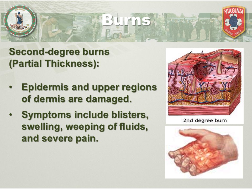 Second-degree burns (Partial Thickness): Epidermis and upper regions of dermis are damaged.Epidermis and upper regions of dermis are damaged. Symptoms