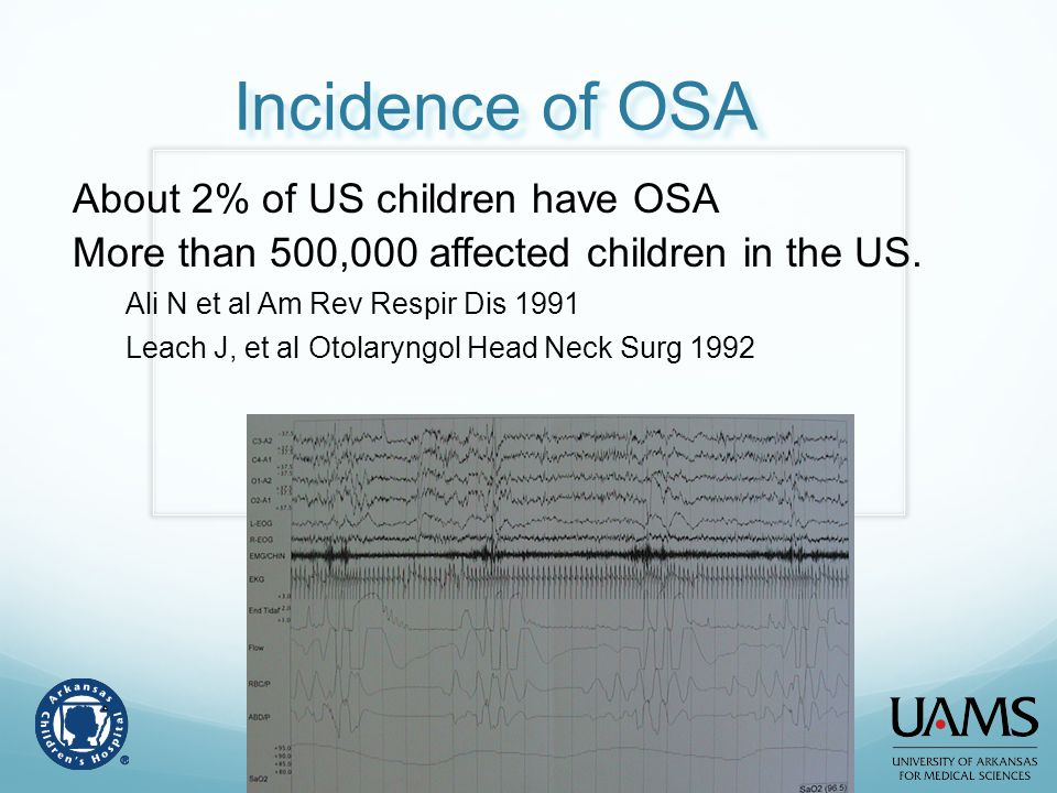 Incidence of OSA About 2% of US children have OSA More than 500,000 affected children in the US. Ali N et al Am Rev Respir Dis 1991 Leach J, et al Oto