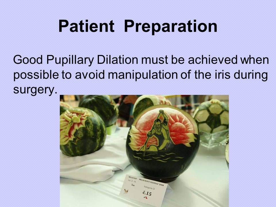 Patient Preparation Good Pupillary Dilation must be achieved when possible to avoid manipulation of the iris during surgery.