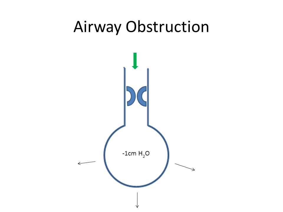 Airway Obstruction -1cm H 2 O