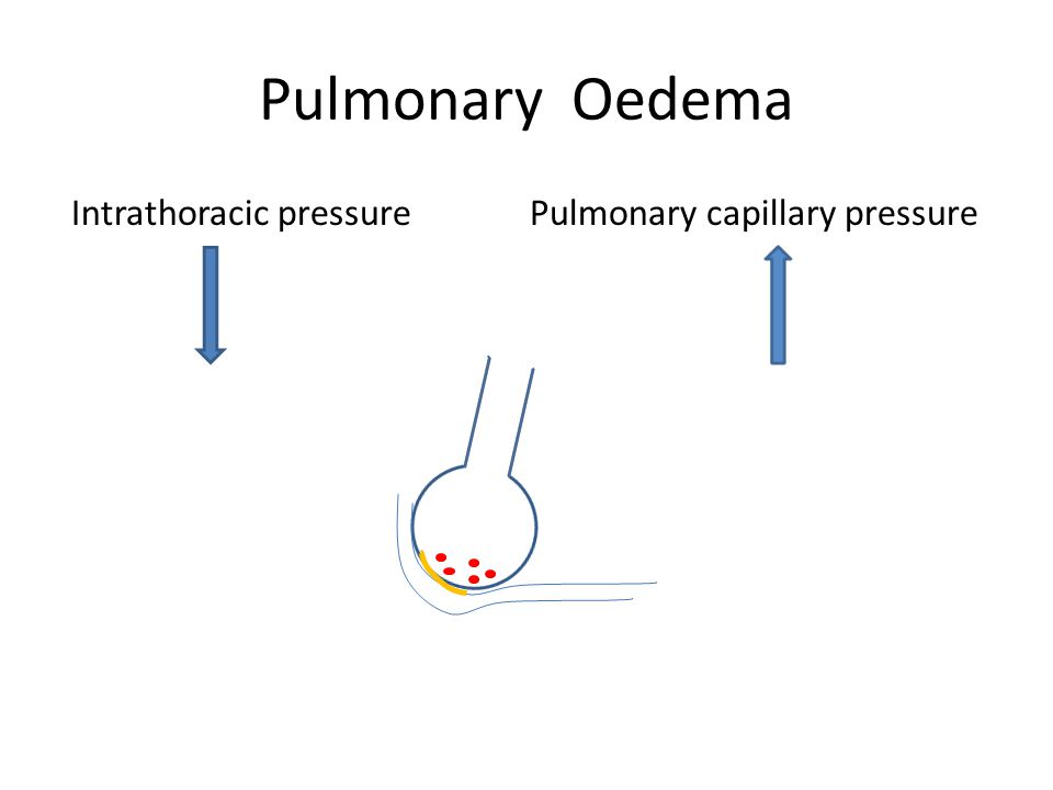 Pulmonary Oedema Intrathoracic pressure Pulmonary capillary pressure
