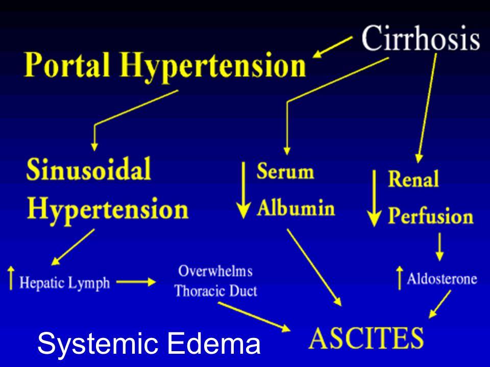Systemic Edema