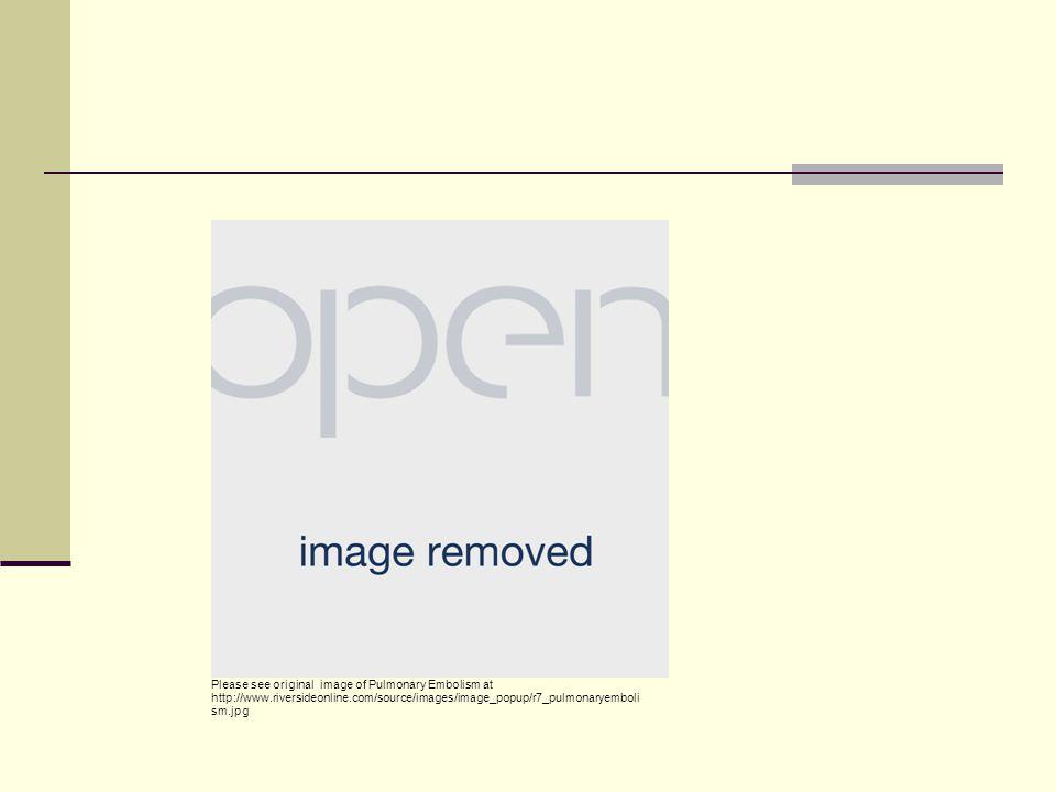 Please see original image of Pulmonary Embolism at http://www.ncbi.nlm.nih.gov/pubmedhealth/PMH0001189/ Source Unknown