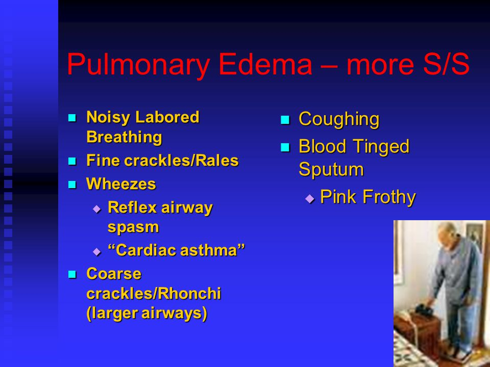 Pulmonary Edema – more S/S Noisy Labored Breathing Noisy Labored Breathing Fine crackles/Rales Fine crackles/Rales Wheezes Wheezes  Reflex airway spasm  Cardiac asthma Coarse crackles/Rhonchi (larger airways) Coarse crackles/Rhonchi (larger airways) Coughing Blood Tinged Sputum  Pink Frothy