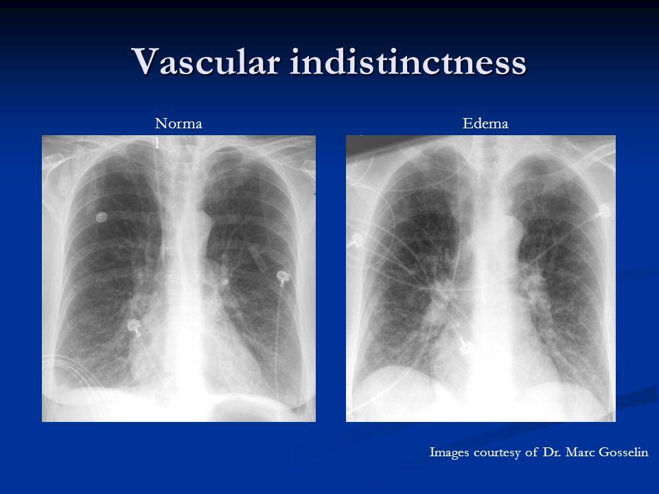 Vascular indistinctness Norma l Edema Images courtesy of Dr. Marc Gosselin