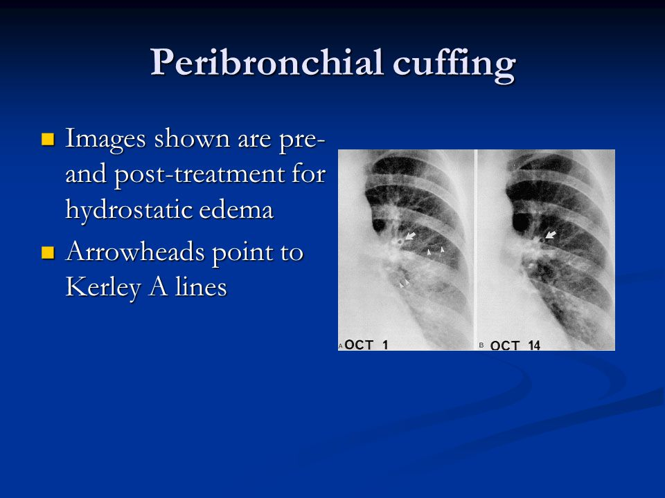 Peribronchial cuffing Images shown are pre- and post-treatment for hydrostatic edema Images shown are pre- and post-treatment for hydrostatic edema Arrowheads point to Kerley A lines Arrowheads point to Kerley A lines