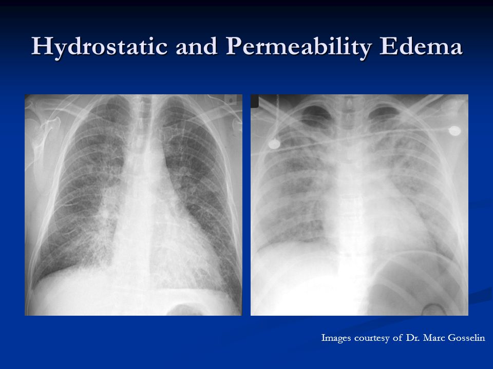 Hydrostatic and Permeability Edema Images courtesy of Dr. Marc Gosselin