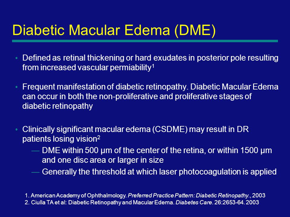 5 Diabetic Macular Edema (DME) Defined as retinal thickening or hard exudates in posterior pole resulting from increased vascular permiability 1 Frequent manifestation of diabetic retinopathy.