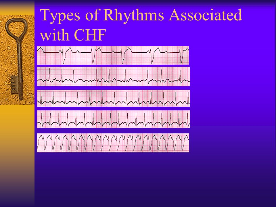 Types of Rhythms Associated with CHF
