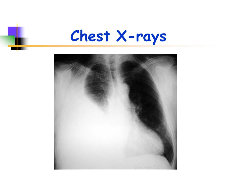 Chest X-rays