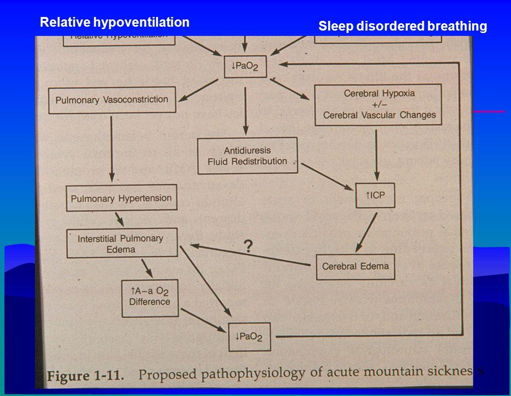 s Sleep disordered breathing Relative hypoventilation