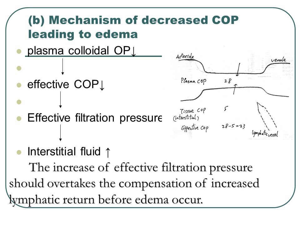 (b) Mechanism of decreased COP leading to edema plasma colloidal OP↓ effective COP↓ Effective filtration pressure ↑ Interstitial fluid ↑ The increase