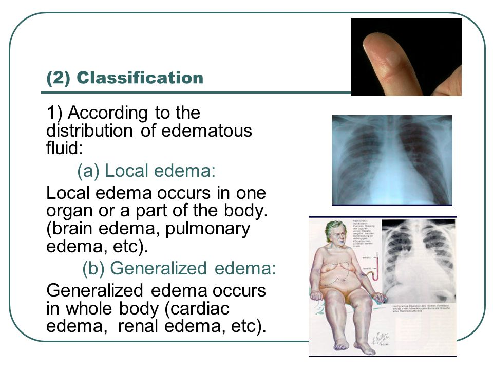 (2) Classification 1) According to the distribution of edematous fluid: (a) Local edema: Local edema occurs in one organ or a part of the body. (brain