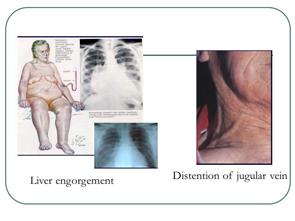 Liver engorgement Distention of jugular vein
