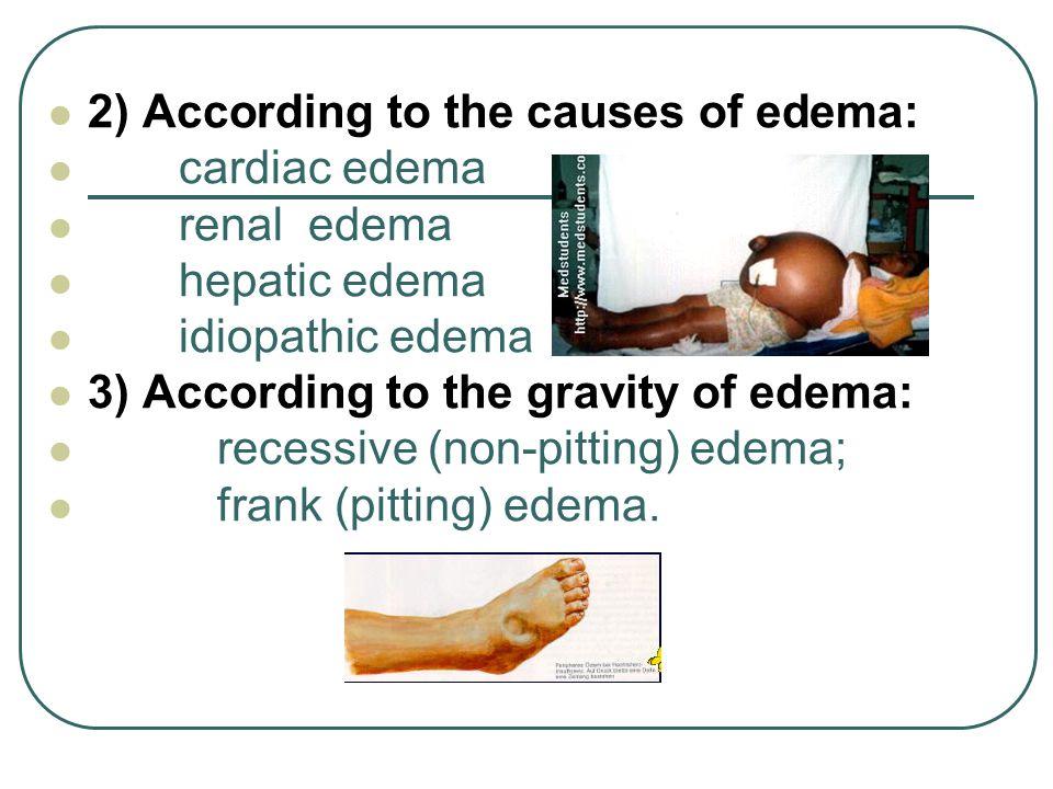 2) According to the causes of edema: cardiac edema renal edema hepatic edema idiopathic edema 3) According to the gravity of edema: recessive (non-pit