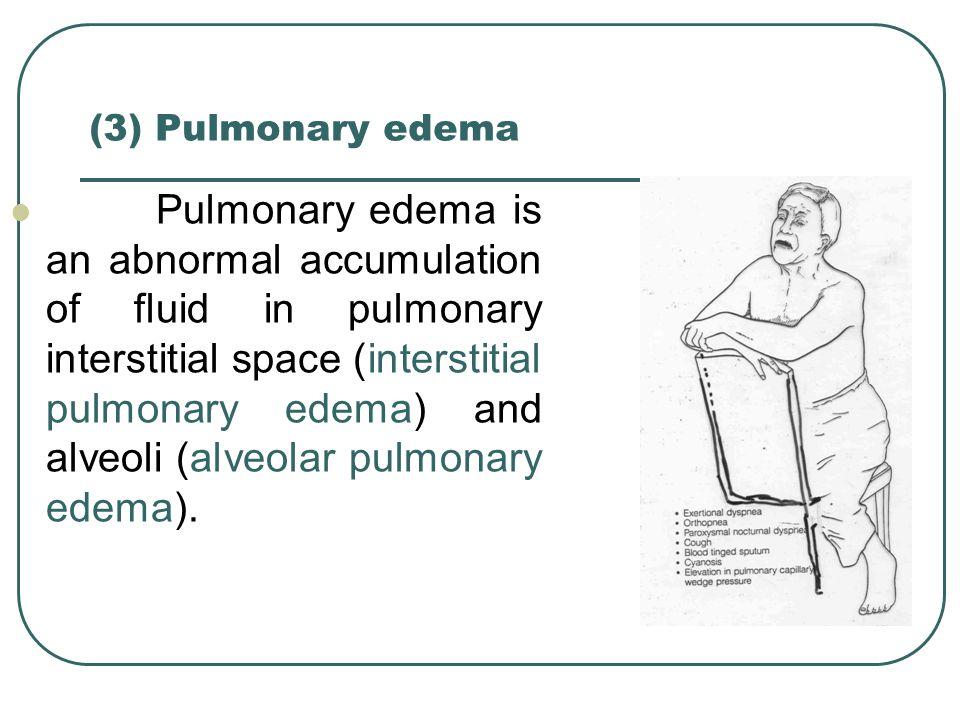 (3) Pulmonary edema Pulmonary edema is an abnormal accumulation of fluid in pulmonary interstitial space (interstitial pulmonary edema) and alveoli (a