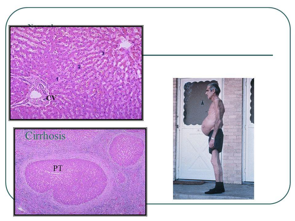 Normal CV PT Cirrhosis
