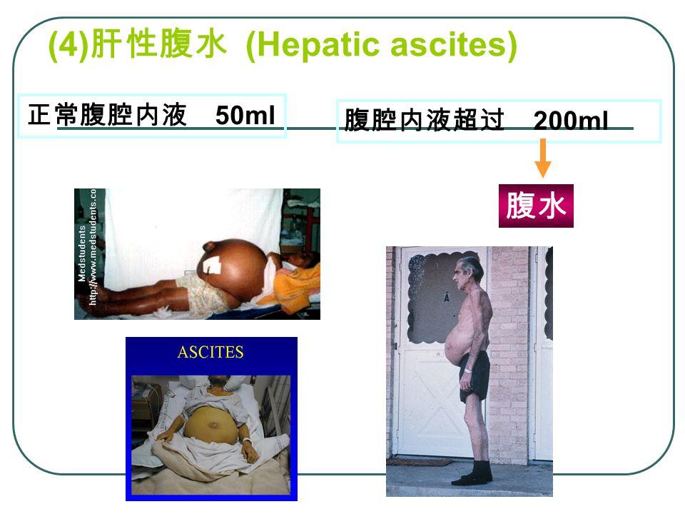 (4) 肝性腹水 (Hepatic ascites) 腹腔内液超过 200ml 正常腹腔内液 50ml 腹水