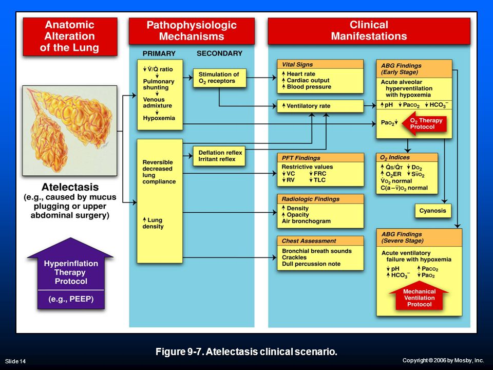 Copyright © 2006 by Mosby, Inc. Slide 14 Figure 9-7. Atelectasis clinical scenario.