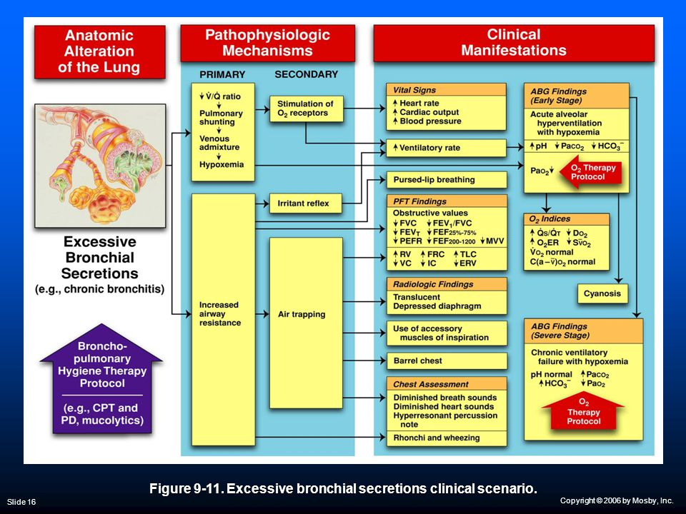Copyright © 2006 by Mosby, Inc. Slide 16 Figure 9-11. Excessive bronchial secretions clinical scenario.