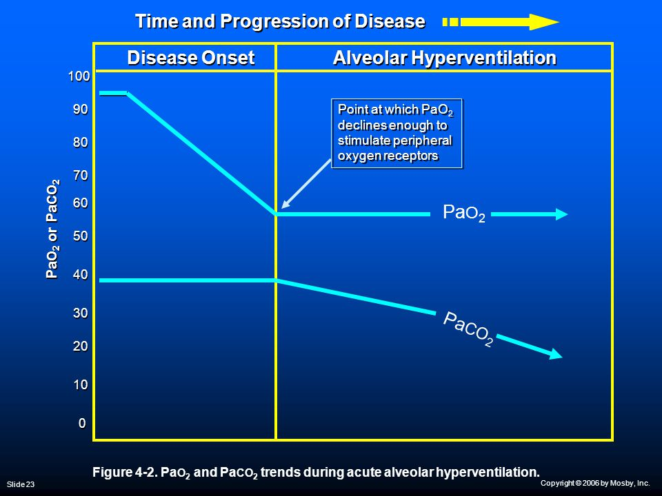 Copyright © 2006 by Mosby, Inc. Slide 23 Time and Progression of Disease 100 50 30 80 0 0 Pa CO 2 10 20 40 Alveolar Hyperventilation 60 70 90 Point at