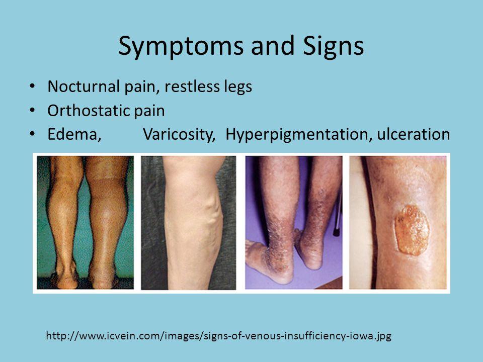 http://www.dukehealth.mobi/Services/VeinClinic/About/WhatIsVenousDisease Venous Stasis Dermatitis