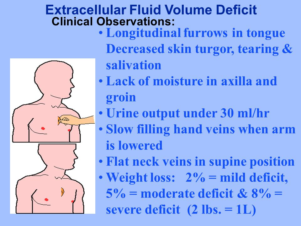 Extracellular Fluid Volume Deficit Clinical Observations: Longitudinal furrows in tongue Decreased skin turgor, tearing & salivation Lack of moisture in axilla and groin Urine output under 30 ml/hr Slow filling hand veins when arm is lowered Flat neck veins in supine position Weight loss: 2% = mild deficit, 5% = moderate deficit & 8% = severe deficit (2 lbs.
