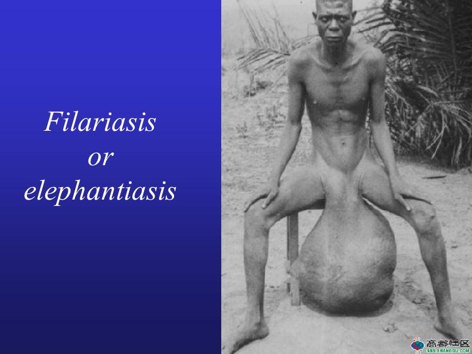 Filariasis or elephantiasis