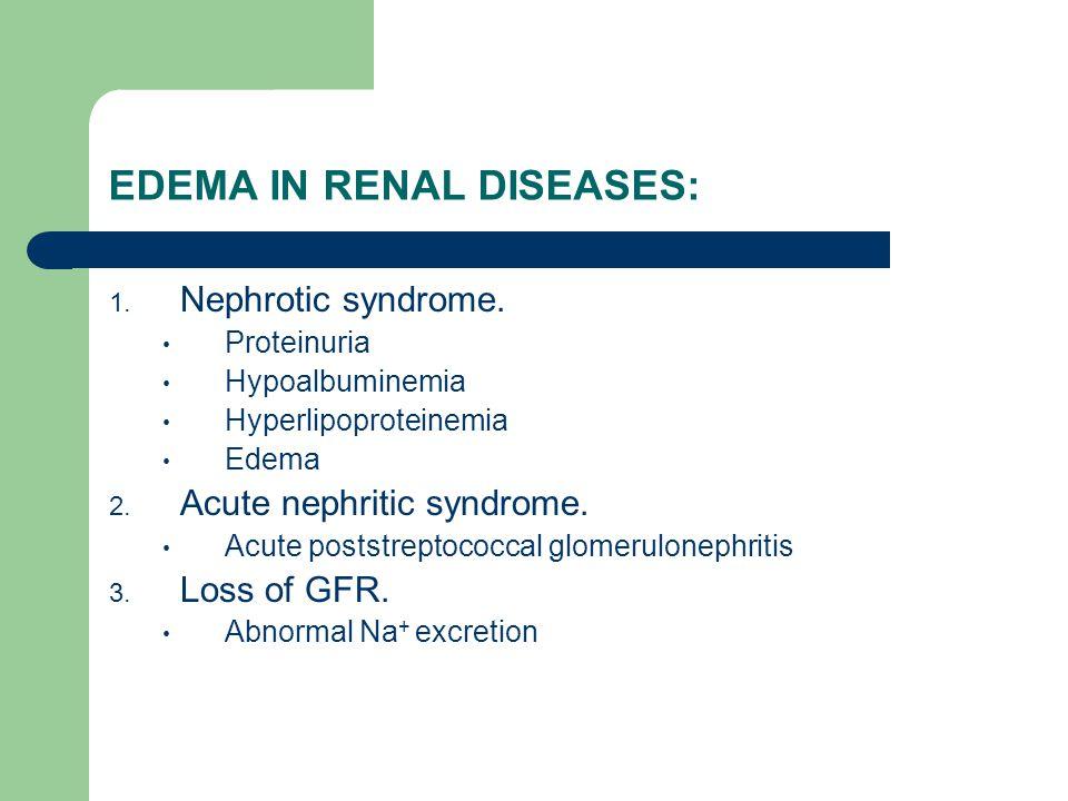 EDEMA IN RENAL DISEASES: 1. Nephrotic syndrome. Proteinuria Hypoalbuminemia Hyperlipoproteinemia Edema 2. Acute nephritic syndrome. Acute poststreptoc