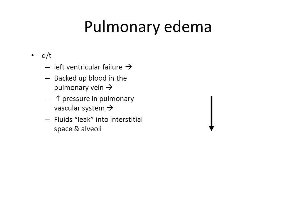 "Pulmonary edema d/t – left ventricular failure  – Backed up blood in the pulmonary vein  –  pressure in pulmonary vascular system  – Fluids ""leak"""