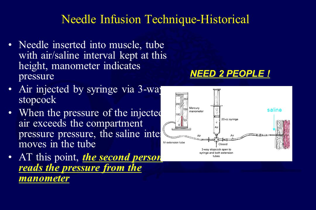 Pressure Measurement Infusion –manometer –saline –3-way stopcock (Whitesides, CORR 1975) Catheter –wick –slit catheter Arterial line –16 - 18 ga.