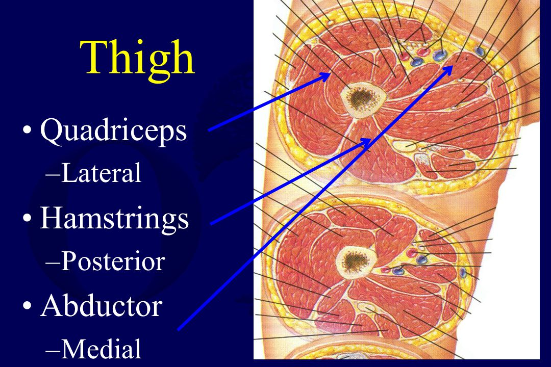 Treatment Based upon involvement Usually Quadriceps and Hamstrings Usually, a single lateral incision will suffice
