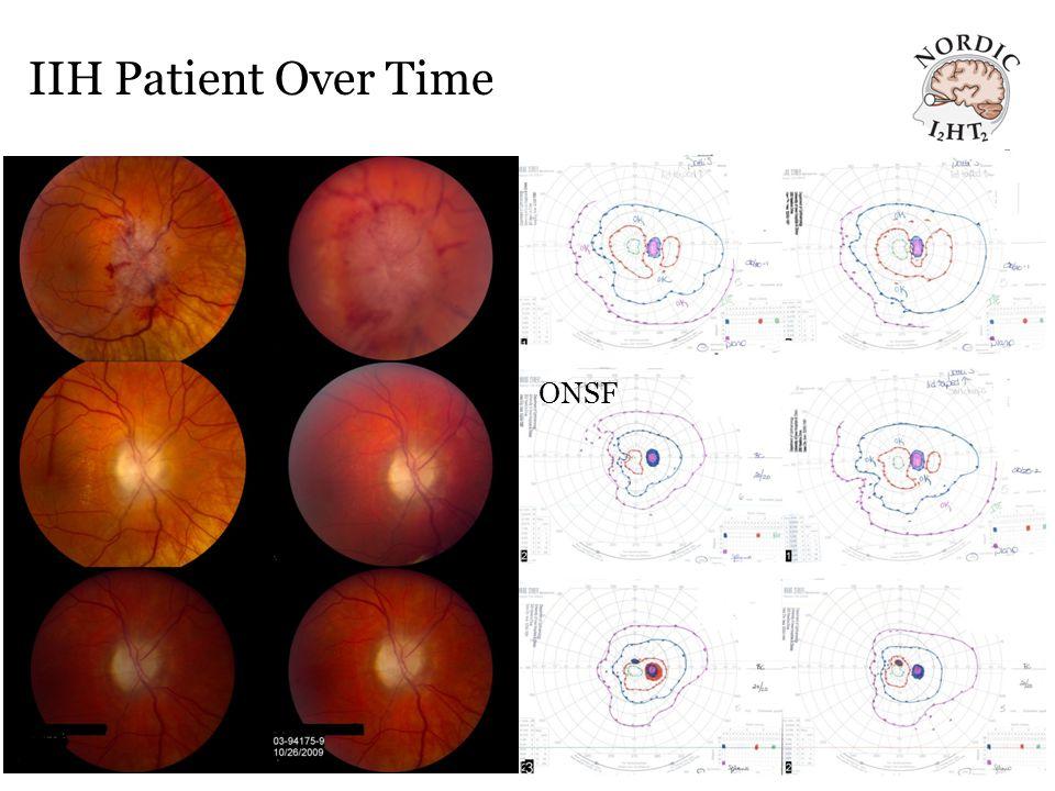 IIH Patient Over Time ONSF