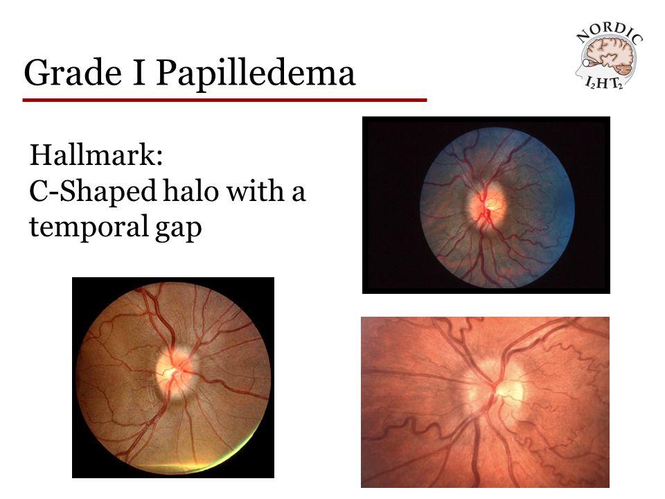 Grade II Papilledema Hallmark: The halo becomes circumferential